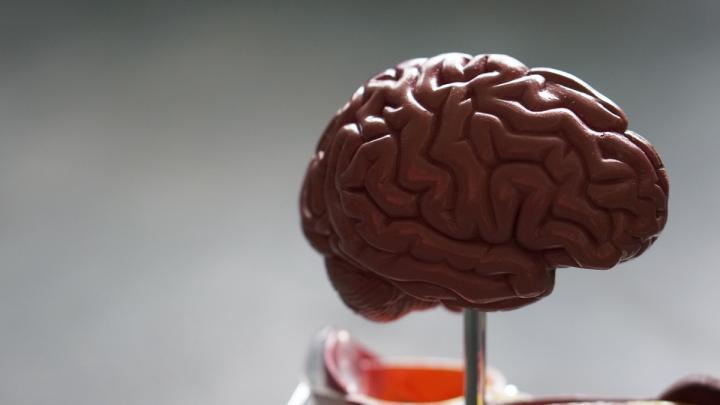 پیش بینی آلزایمر با استفاده از یک عکس